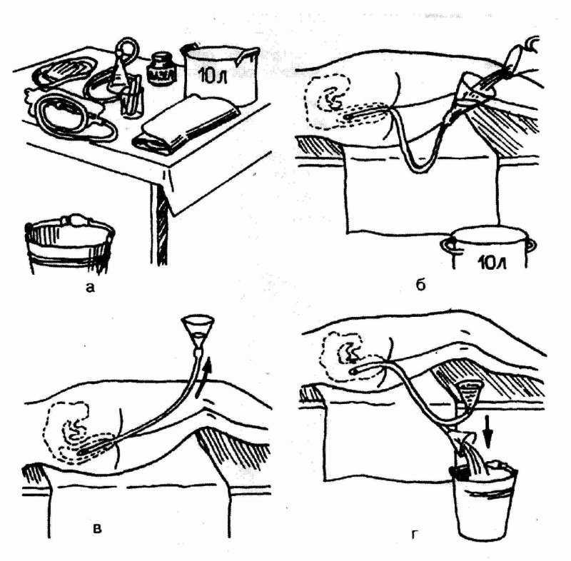 Эректильная дисфункция у мужчин после 50 лет, лекарство от эректильной дисфункции после 50 лет