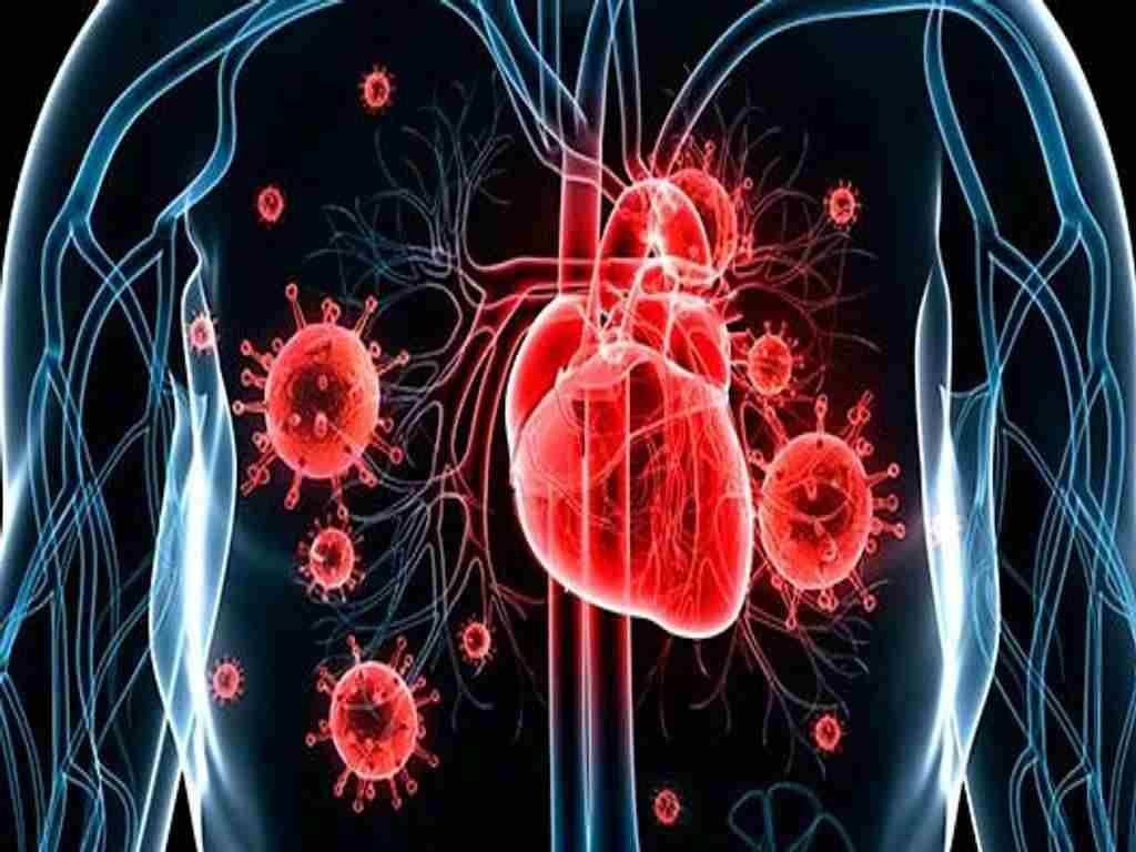 Инфекционный эндокардит острый, симптомы и лечение инфекционного эндокардита, клиника, терапия лечение бакэндокардита антибиотиками