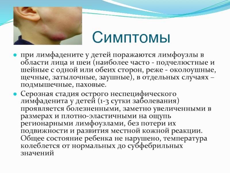 Лимфаденит у детей: симптомы, лечение и причины возникновения, профилактика