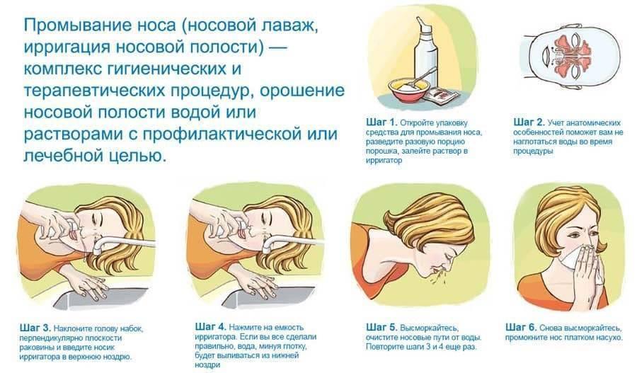 Как промыть нос ребенку правильно в домашних условиях: средства при насморке и заложенности