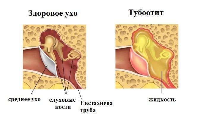 Отит среднего уха у детей (хронический) - симптомы болезни, профилактика и лечение отита среднего уха у детей (хронического), причины заболевания и его диагностика на eurolab