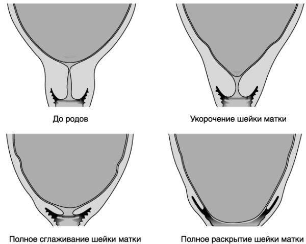 Раскрытие шейки матки: причины, как подготовится,симптомы, фазы и фото