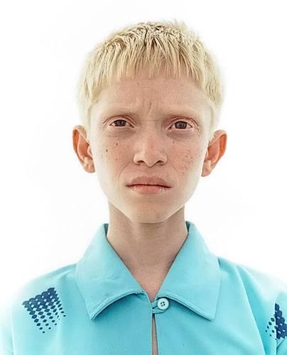 Какие бывают альбиносы. «белая ворона», или особенности здоровья и развития ребенка-альбиноса