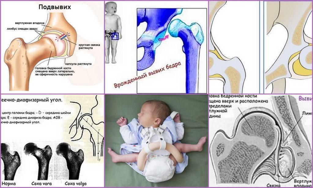 Лечение дисплазии тазобедренных суставов