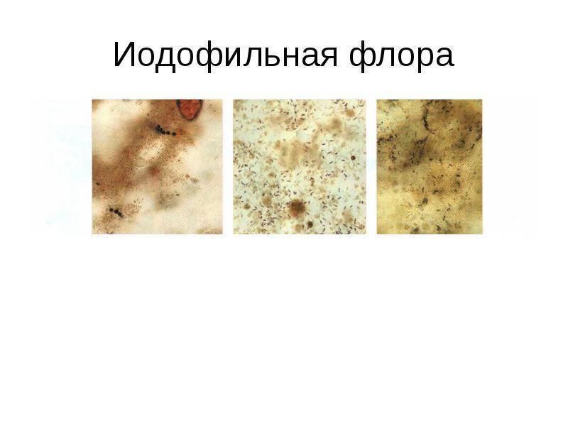 Новинка в кдл «биогенетика»! диагностический маркер – эластаза панкреатическая