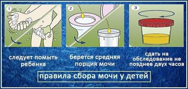 Кровь в моче у детей: причины крови в моче у детей, прием уролога в москве