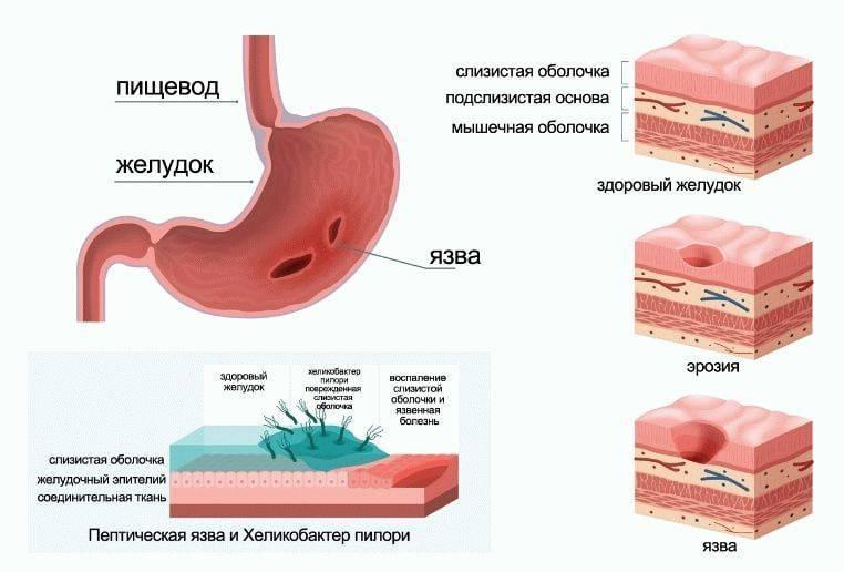 Боли в желудке | что делать, если болит желудок? | лечение боли и симптомы болезни на eurolab