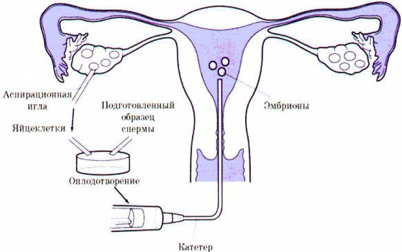 Противопоказания к беременности по эко