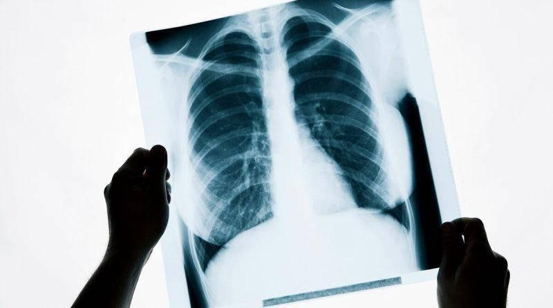 Рентген органов грудной клетки (рентген легких, флюорография)