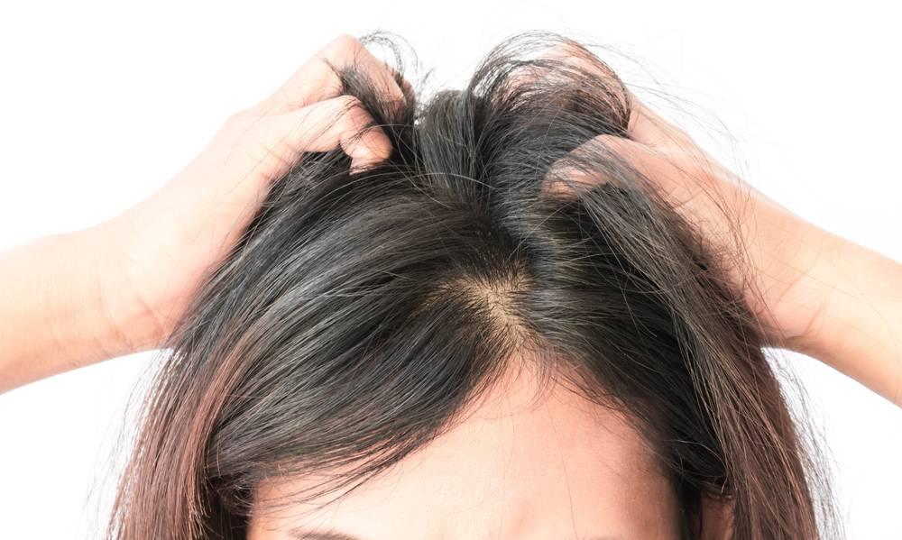 Сухая кожа головы: что делать?