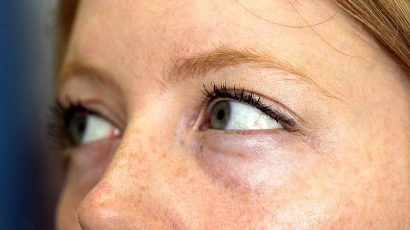 Мешки под глазами. причины и лечение.
