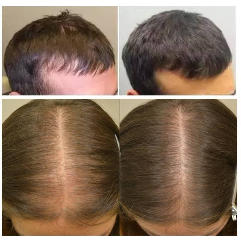 Волшебный андроген или отчего растут и выпадают волосы - unibeauty.ru