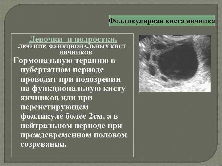 Дисфункциональные маточные кровотечения - симптомы болезни, профилактика и лечение дисфункциональных маточныъ кровотечений, причины заболевания и его диагностика на eurolab