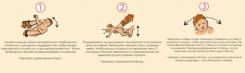 Операция при кривошее в москве, проведение операции при кривошее у детей в клинике цэлт.