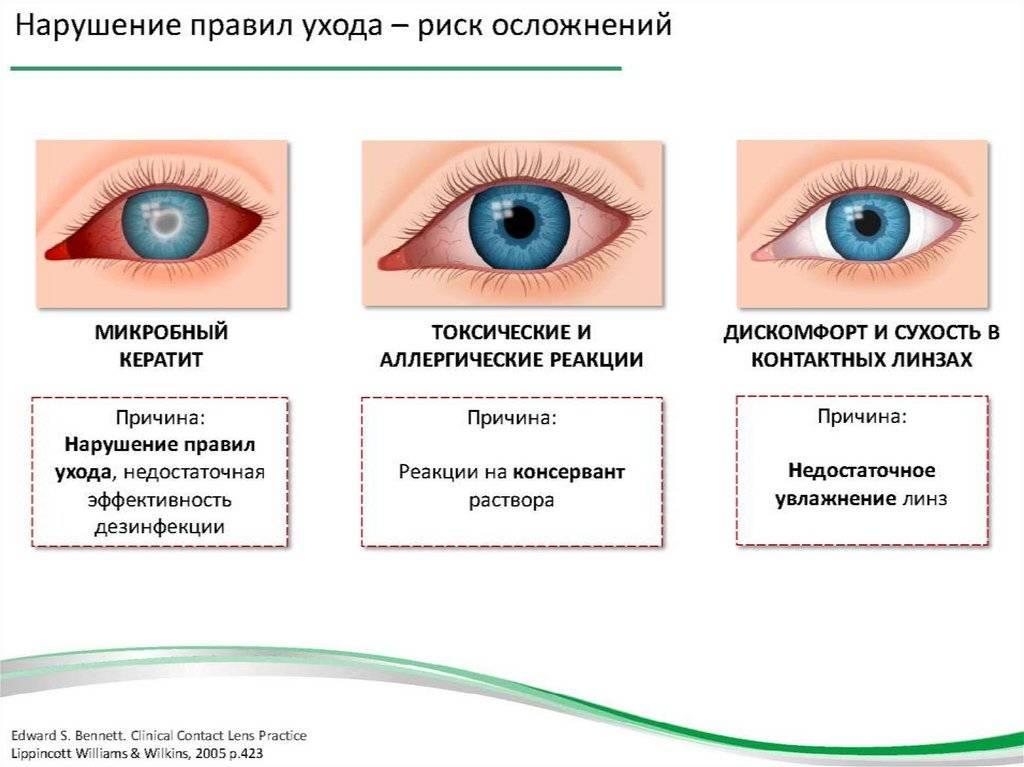 Сосудистые заболевания оболочки глаз, методы лечения