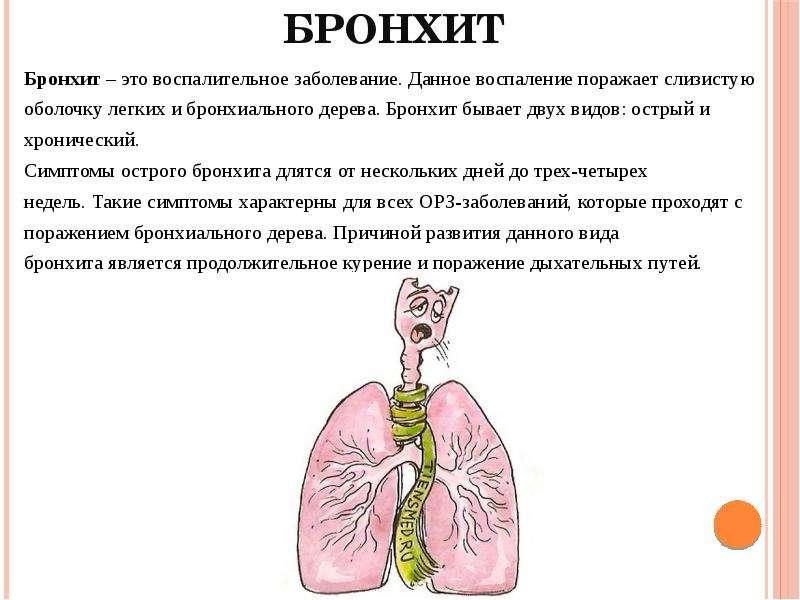 Трахеит — большая медицинская энциклопедия