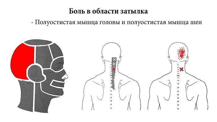 Как избавиться от боли в шее после сна, основные причины боли