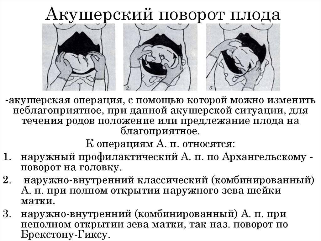 На какой неделе малыш переворачивается вниз головой или когда ребенок должен развернуться головкой вниз • твоя семья - информационный семейный портал