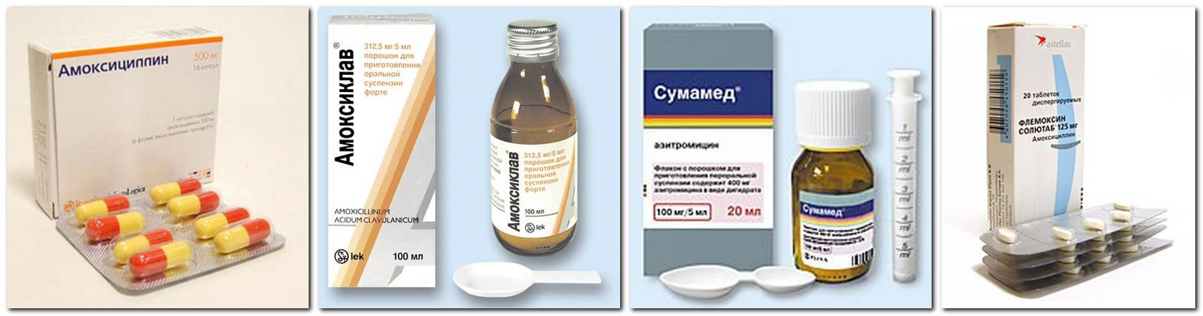 Особенности бактериальной ангины: симптомы, причины возникновения, лечение