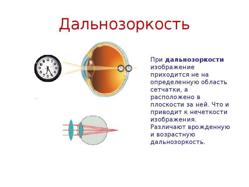 Запас дальнозоркости у детей — что это? - энциклопедия ochkov.net