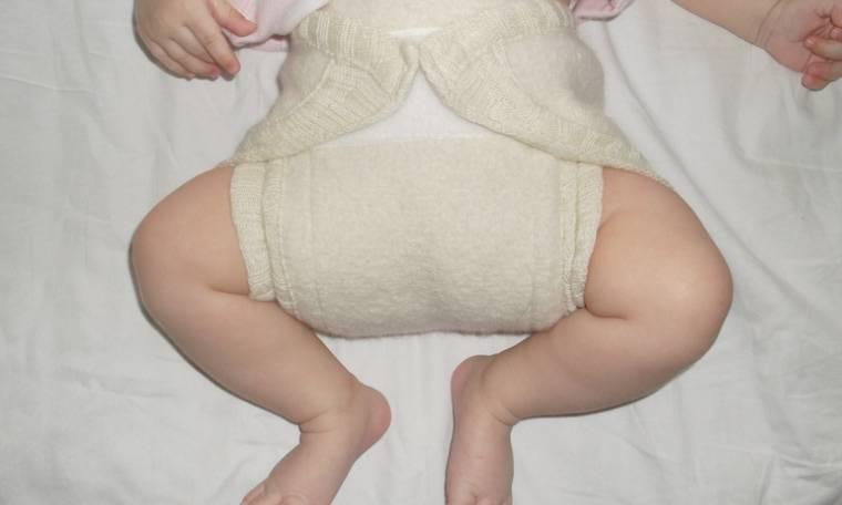 Заболевания тазобедренного сустава: виды и диагностика