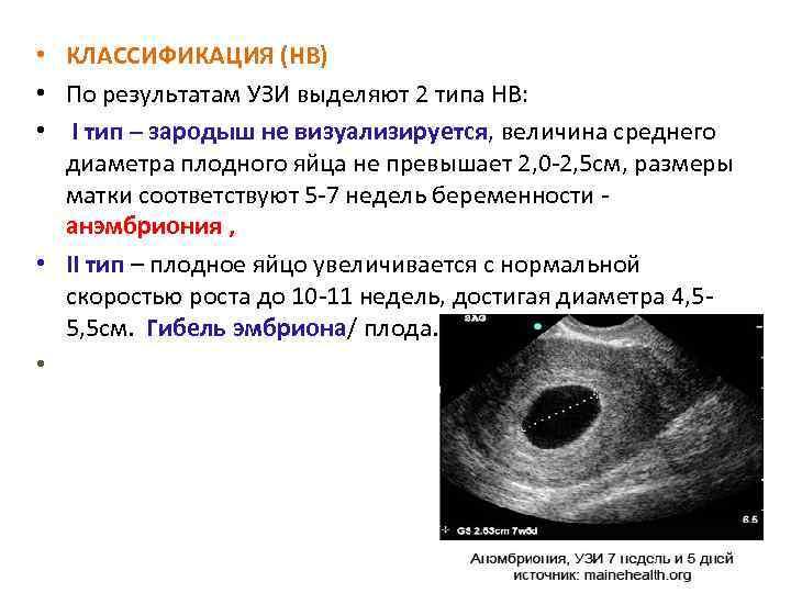 Когда на узи видно плодное яйцо, почему эмбрион не визуализируется на сроке 6–7 недель беременности?