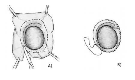 Гидроцеле - водянка яичка