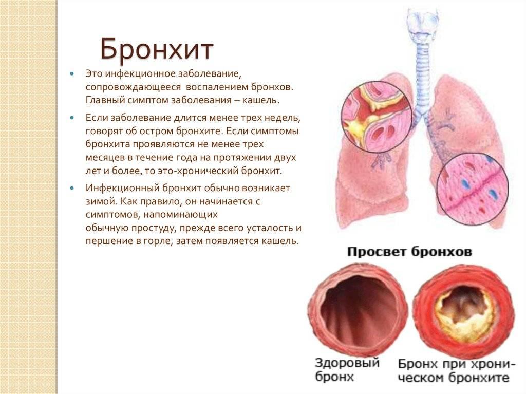 Синусит – симптомы, лечение, профилактика. виды синусита: гайморит, фронтит, этмоидит.