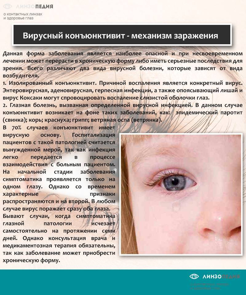 Как быстро вылечить конъюнктивит у ребенка - энциклопедия ochkov.net