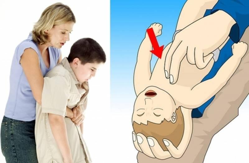 Что делать, если ребенок проглотил косточку?
