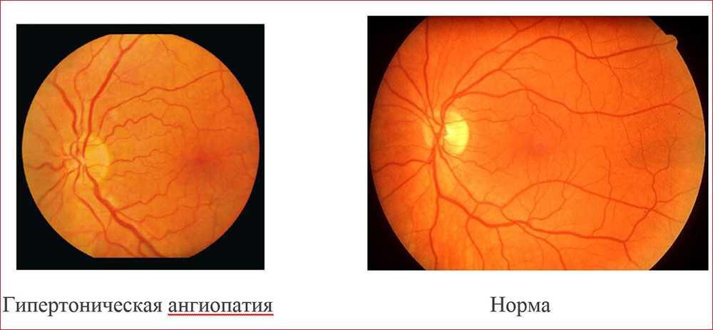 Ишемическая оптическая нейропатия обоих глаз у новорожденных — что это? - энциклопедия ochkov.net