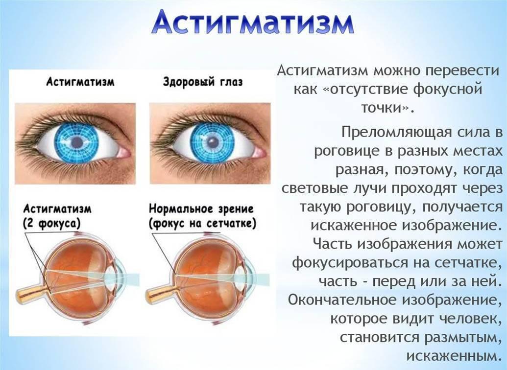 Причины появления близорукости у подростков - энциклопедия ochkov.net