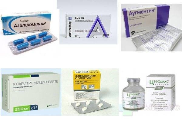 Нужно ли использовать антибактериальные препараты при отите у малыша?