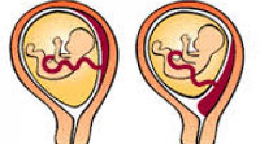 Виды расположения плаценты: по передней, задней и боковой стенке матки, опасность низкой плацентации