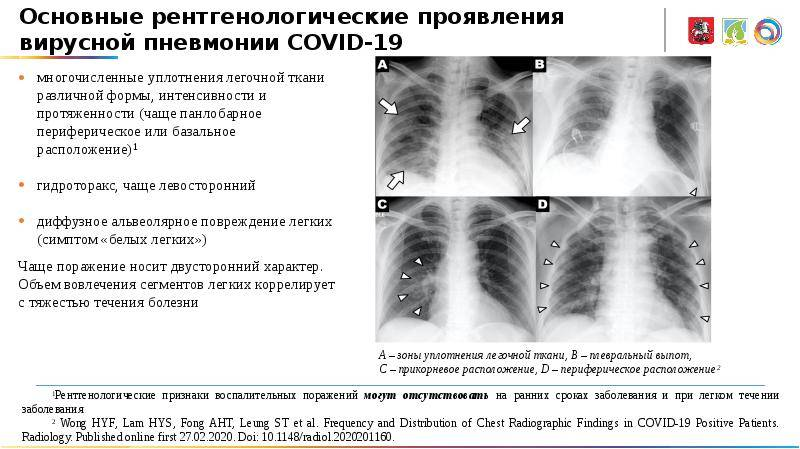 Пневмония у детей - детский медицинский центр федорова
