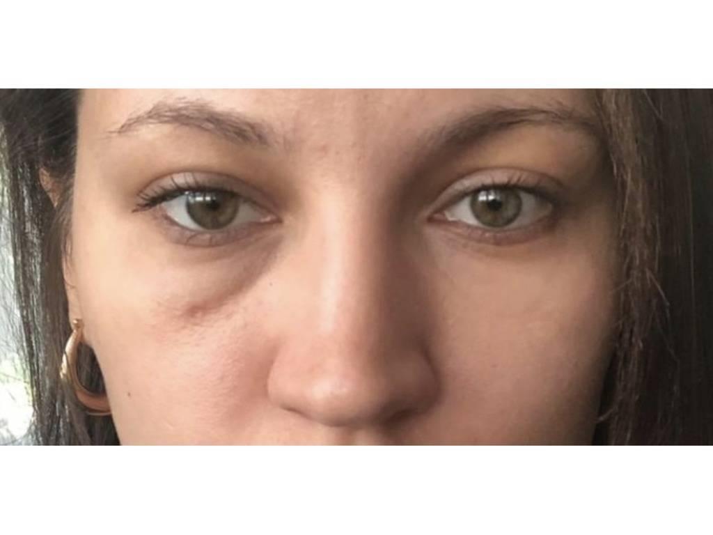 Мешки под глазами у ребенка - причины в 1, 2 года и старше