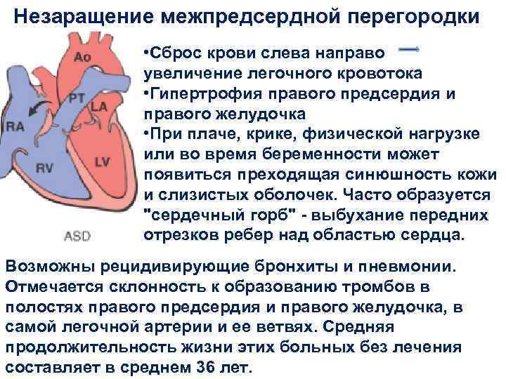 Эндоваскулярная операция —  закрытие дмпп окклюдером