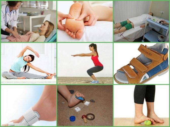 Хирургическая коррекция вальгусной деформации коленного сустава у взрослых введение | фото до и после, операция, отзывы, лечение, реабилитация и восстановление