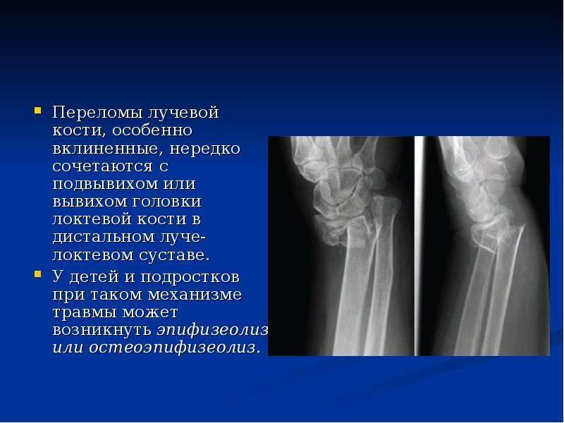 Хлыстовая травма шеи - лечение, симптомы, причины, диагностика | центр дикуля