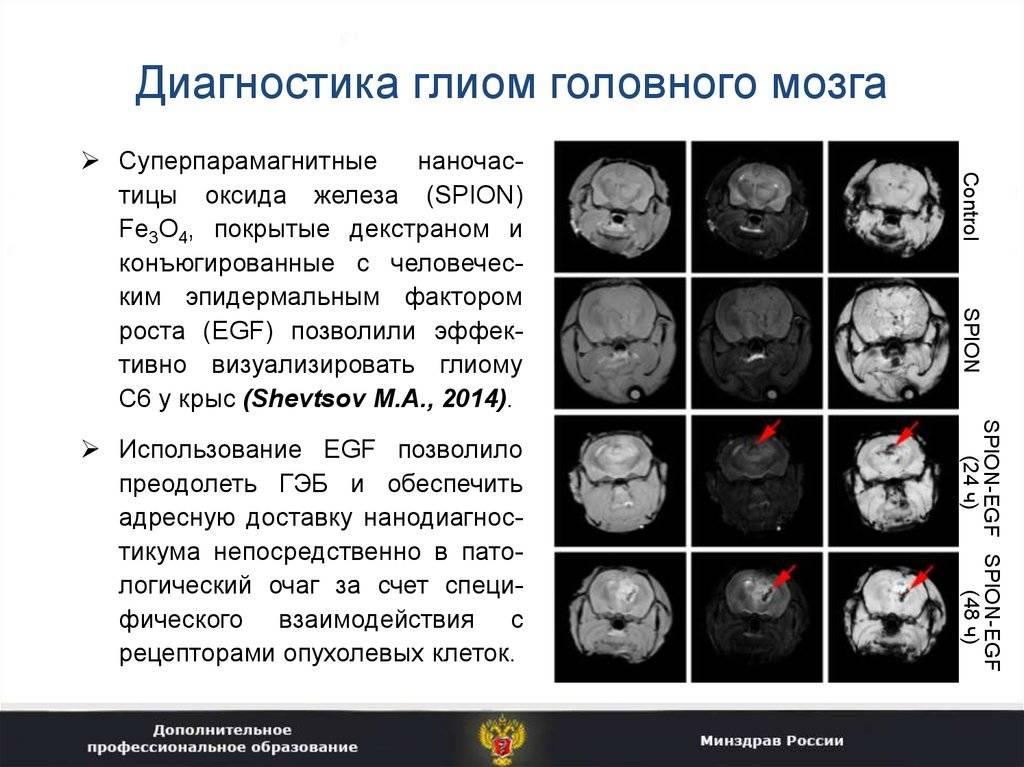 Лечение глиомы головного мозга в бурденко в россии, операция глиомы ствола мозга, доброкачественная, злокачественная глиома головного мозга, что это такое, продолжительность жизни при глиоме