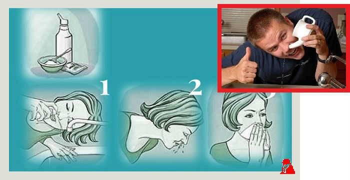 Промывание носа морской водой в домашних условиях