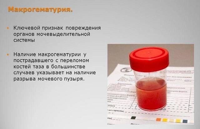 Сгустки крови в моче - симптом различных заболеваний у женщин и мужчин | университетская клиника