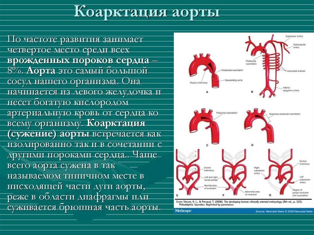 Порок сердца (врожденный и приобретенный )