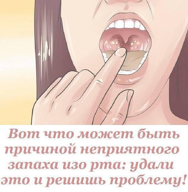 Как убрать неприятный запах изо рта – причины, как избавиться быстро