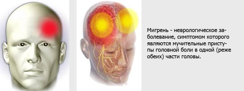 Симптомы болезни - боли в голове у ребенка