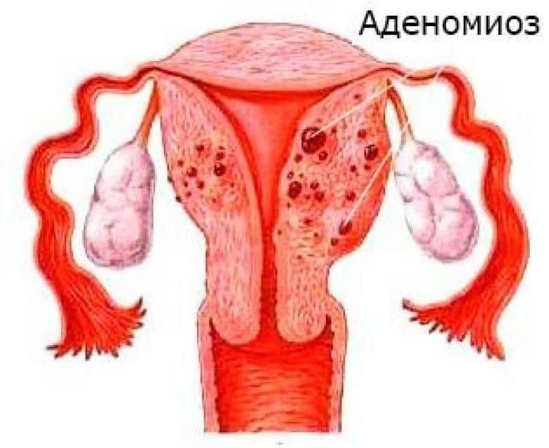 Аденомиоз: симптомы, причины, осложнения и современное лечение