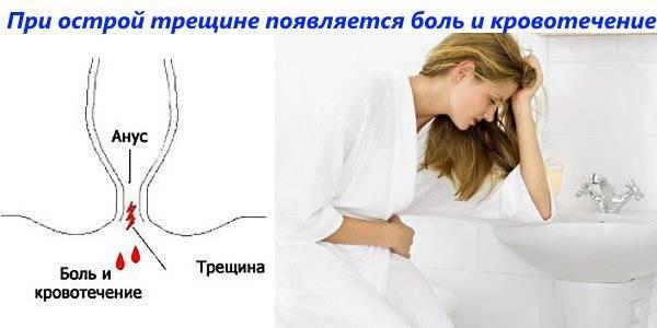 Симптомы болезни - боли в прямой кишке