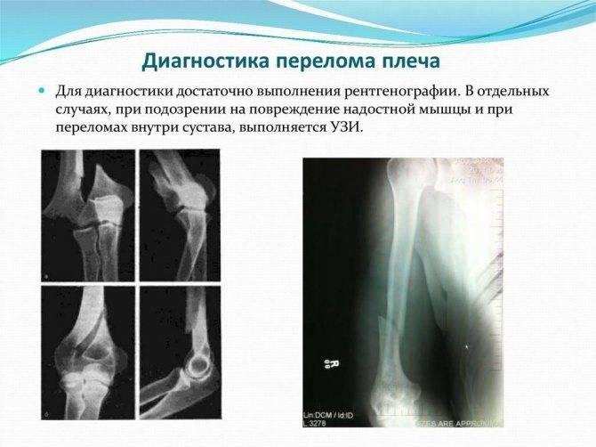 Остеопороз суставов: лечение, симптомы, виды и диагностика