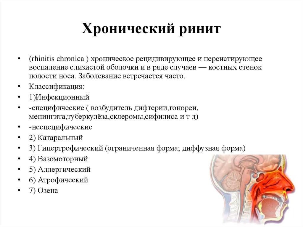 Симптомы и лечение синусита у детей, как вылечить хронический острый гнойный синусит
