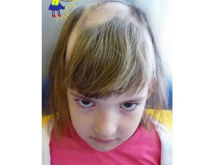 Почему у ребенка плохо растут волосы? | мамоведия - о здоровье и развитии ребенка